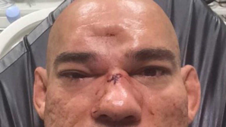 MMA fighter suffers fractured skull after catching flying ...