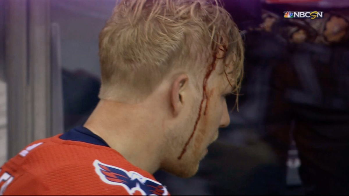 LOOK: Brad Marchand bloodies Lars Eller with big punches in controversial fight