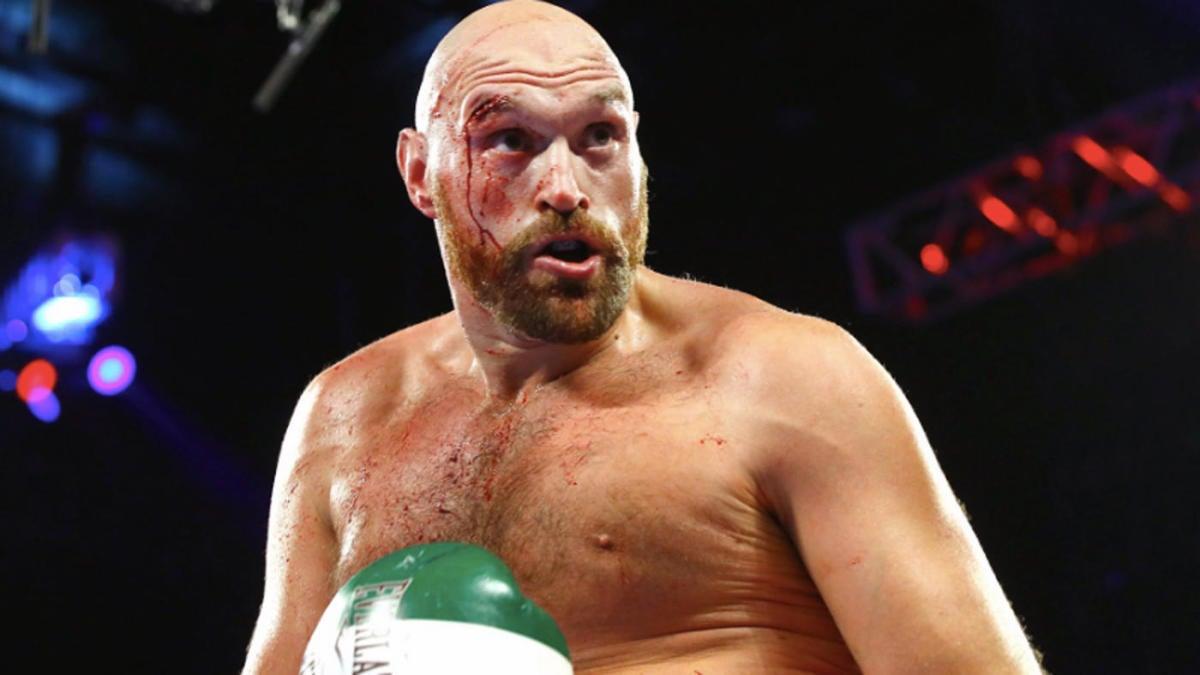 tyson fury fight - photo #31