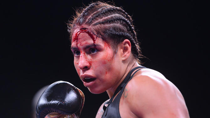 LOOK: Seniesa Estrada vs. Marlen Esparza stopped after gruesome cut from head butt