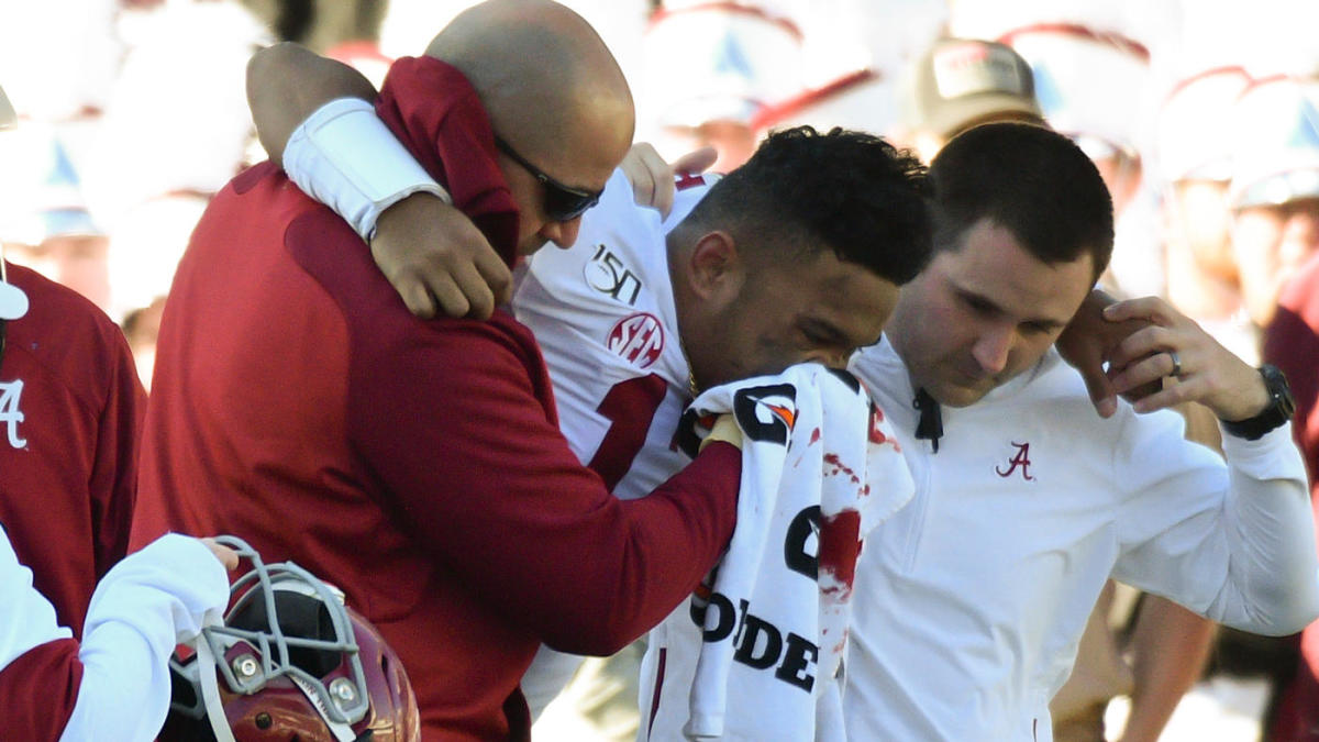 Tua Tagovailoa injury: Alabama QB carted off with hip issue, bloody nose vs. Mississippi State
